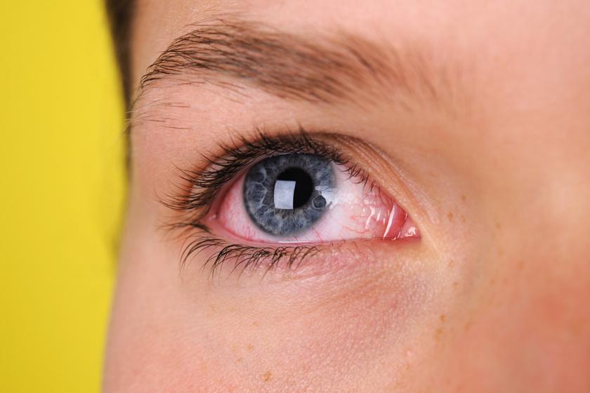 az egyik szem látása súlyosan romlik