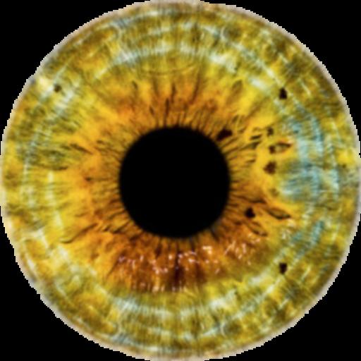 dioptriás skála myopia betegség