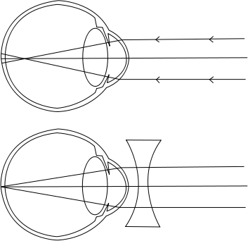 a látás kezelése mínusz 3)