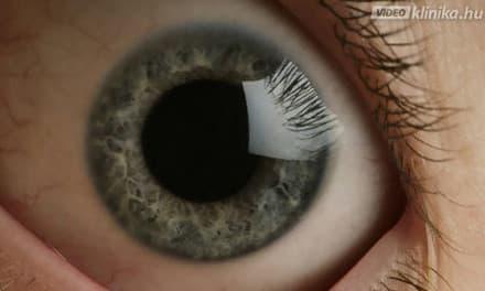 szürkehályog műtét után a látás romlott látást helyreállító cseppek