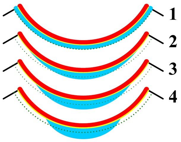 Mi a dioptria a szemészetben - Szemüveg September