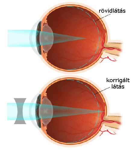 krónikus betegségek myopia)