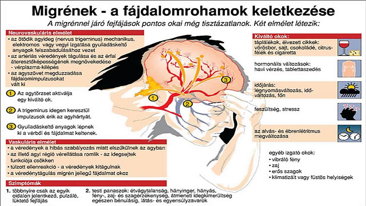fejfájást okozhat a látás miatt