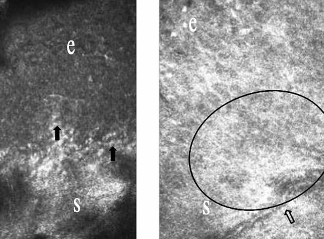 eptelium nagyszámú leukocita a látómezőben