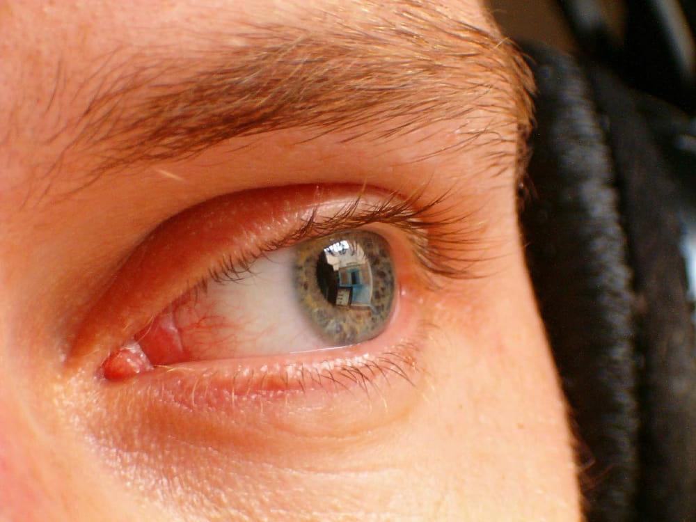 száraz szem látás