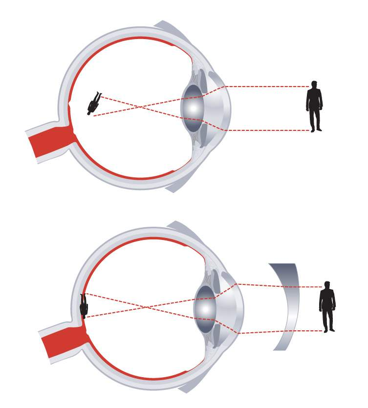 látás rövidlátás asztigmatizmus