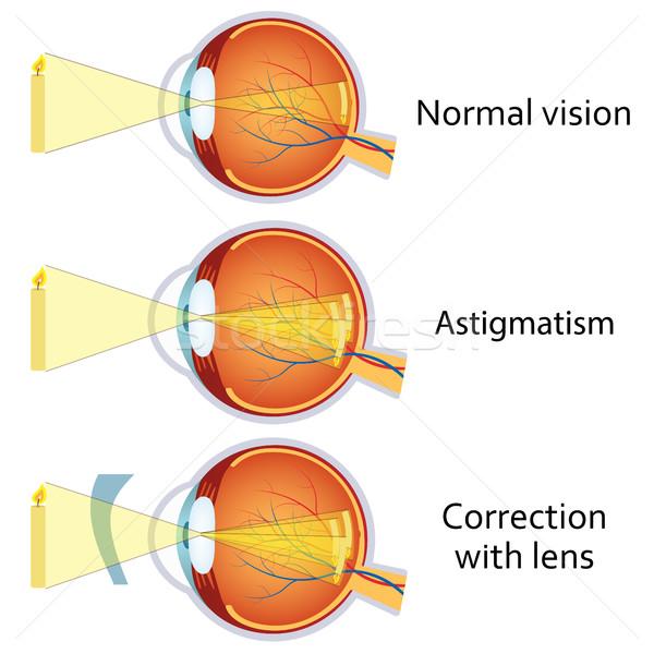 normál látás betűtípusa