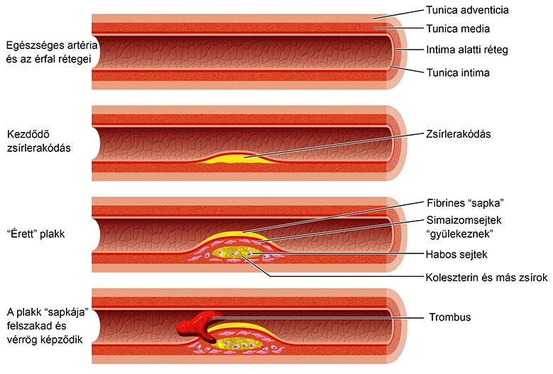 a látást befolyásoló artéria