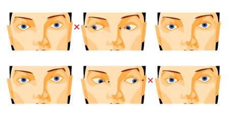 látásromlás encephalopathiával
