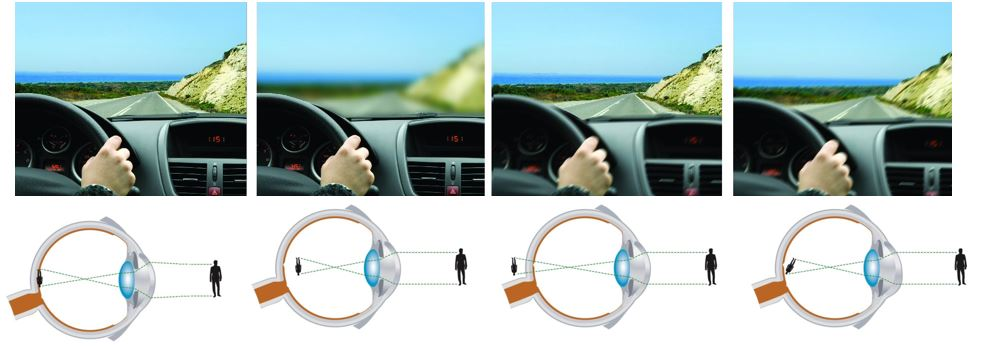 rövidlátó szemet kezelhet