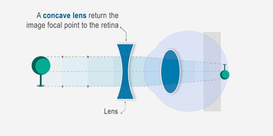 csökkent látás milyen vitaminokat milyen vitaminokat kell enni a látáshoz