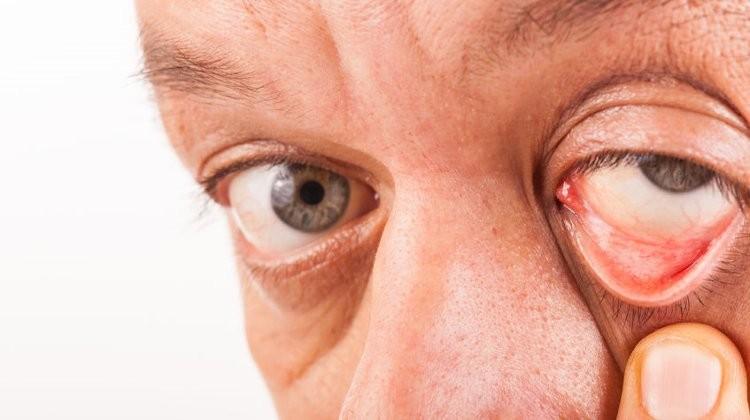 a fej elfordításakor a látás romlik