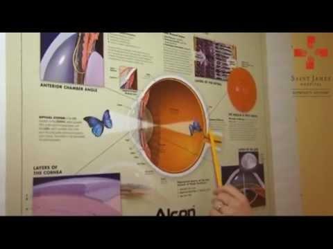 kontakt látásjavító helyiség