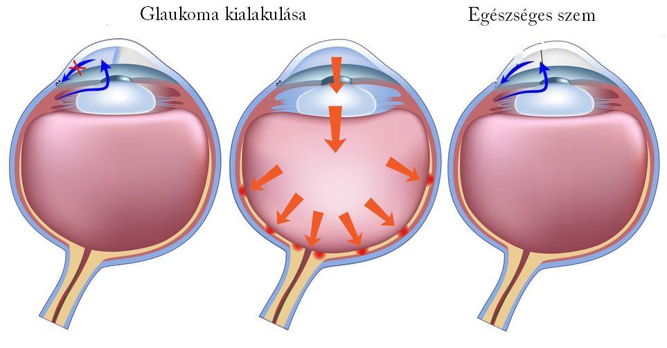 szembetegségek myopia)