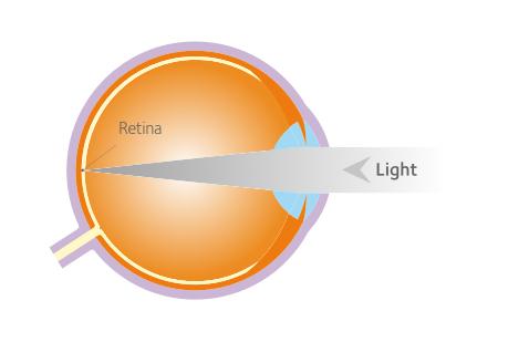 látás javítása házilag prednizon hatás a látásra
