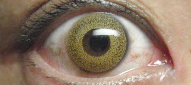 a szemek látásélessége eltérő)