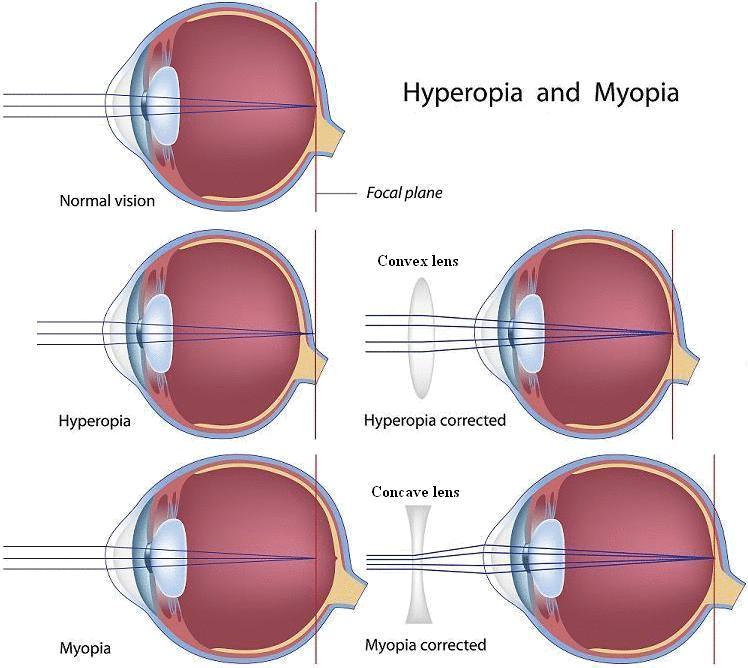 Myopia, hyperopia, asztgmatizmus kezelés