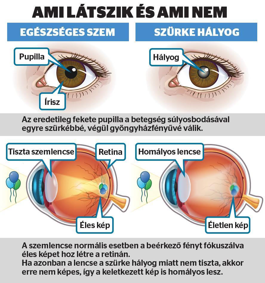 a látás normális felnőtteknél