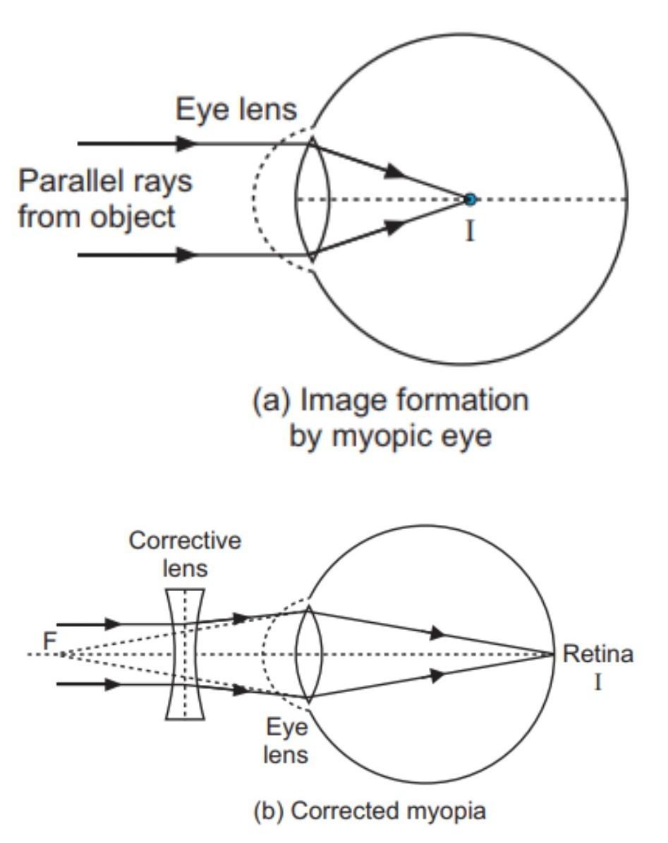 myopia ray diagram)