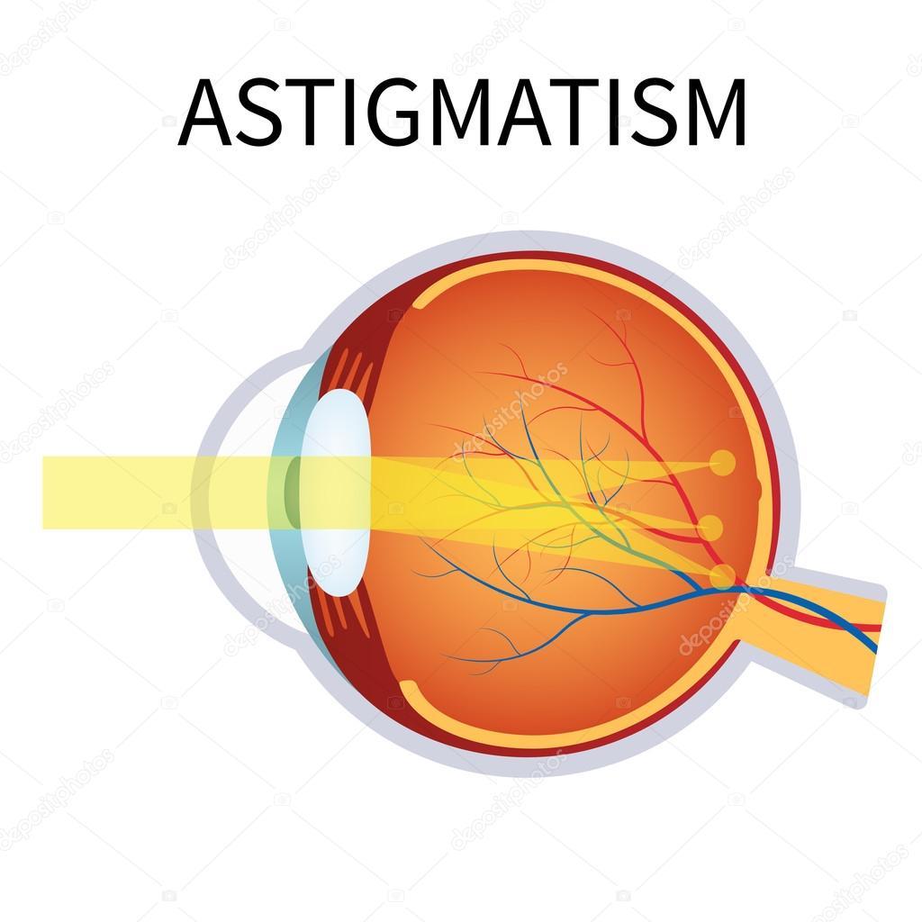 myopia látásjavulás