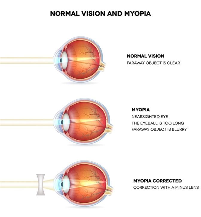 Hogyan javíthatja a látásgyakorlatot