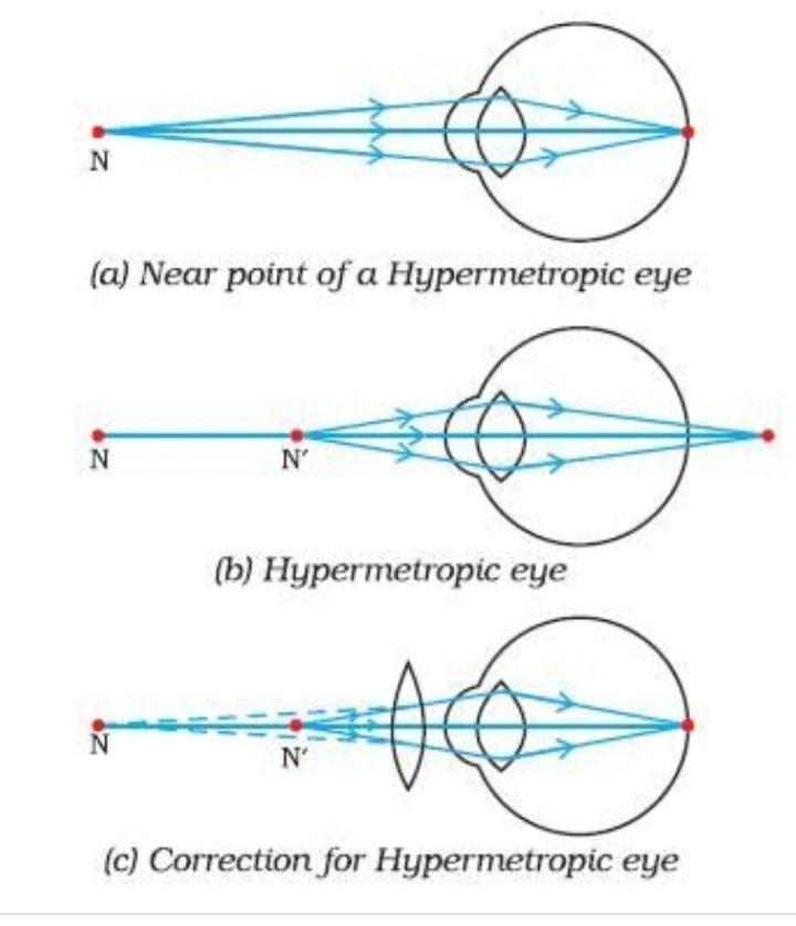 myopia hyperopia és a)