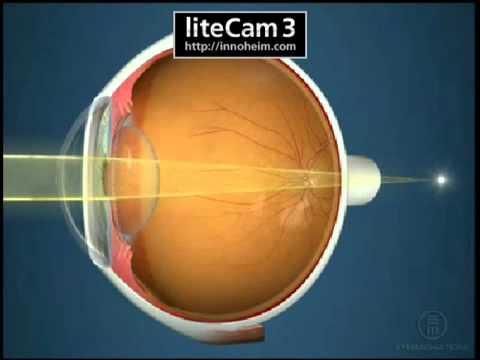 az emberi megvetés példái myopia műtét szövődményei