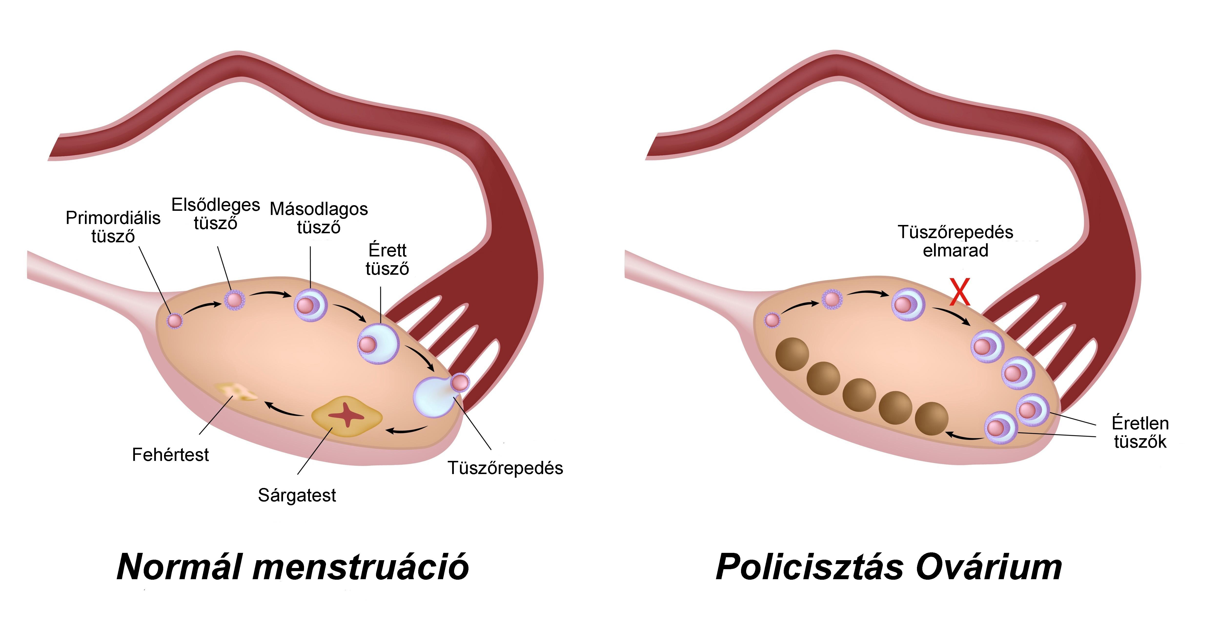 feltételezett petefészekgyulladás
