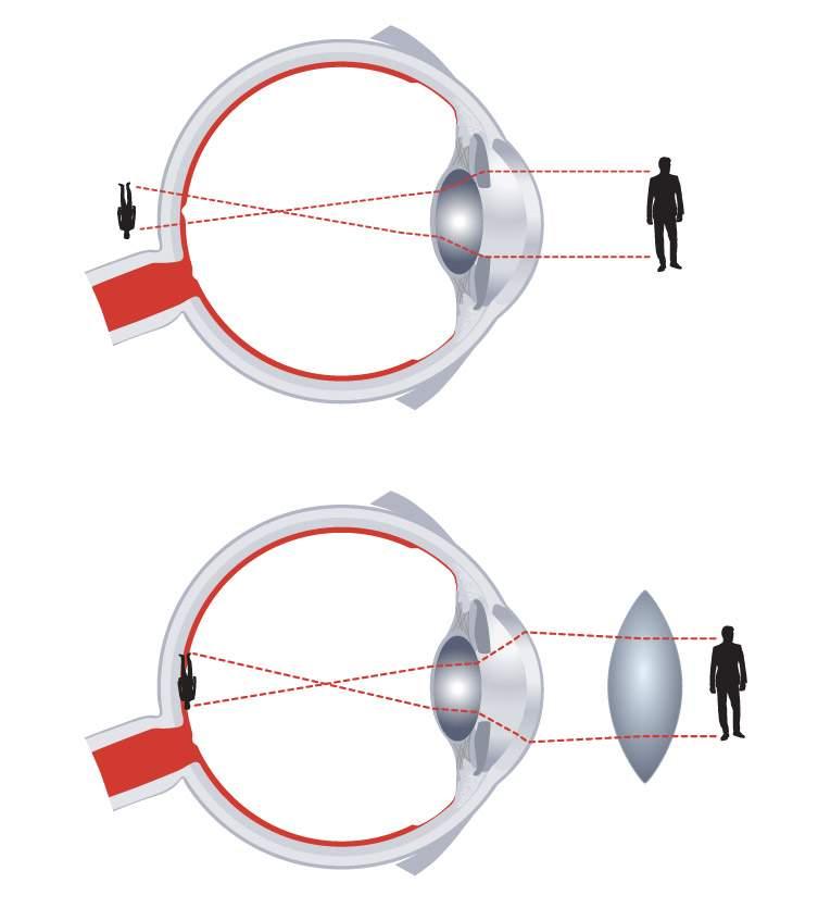 rövidlátás, ami a szem erősítéséhez szükséges