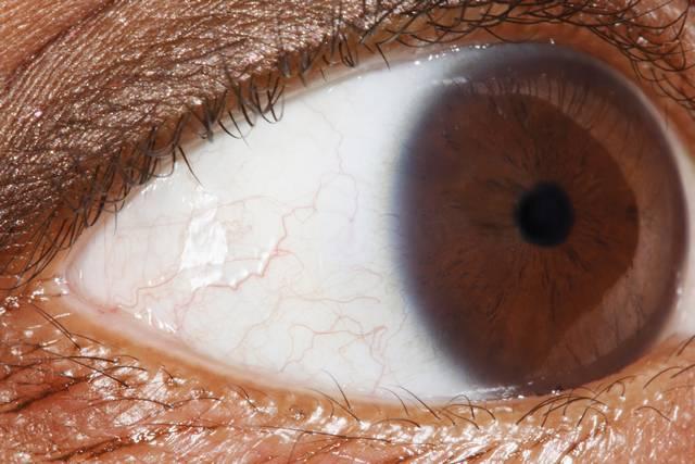 amikor a szeme más)