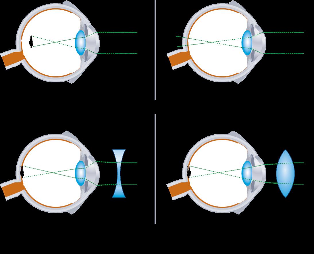 A kóros rövidlátás talaján kialakult súlyos látásromlás
