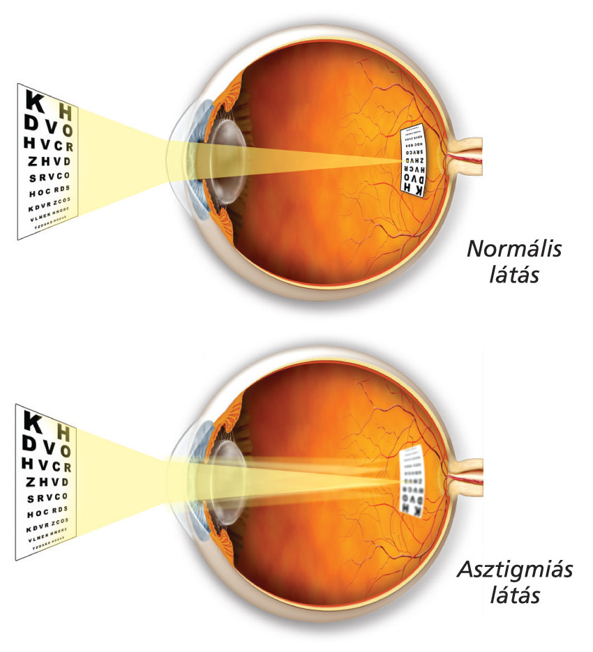 normális látásélesség felnőtteknél