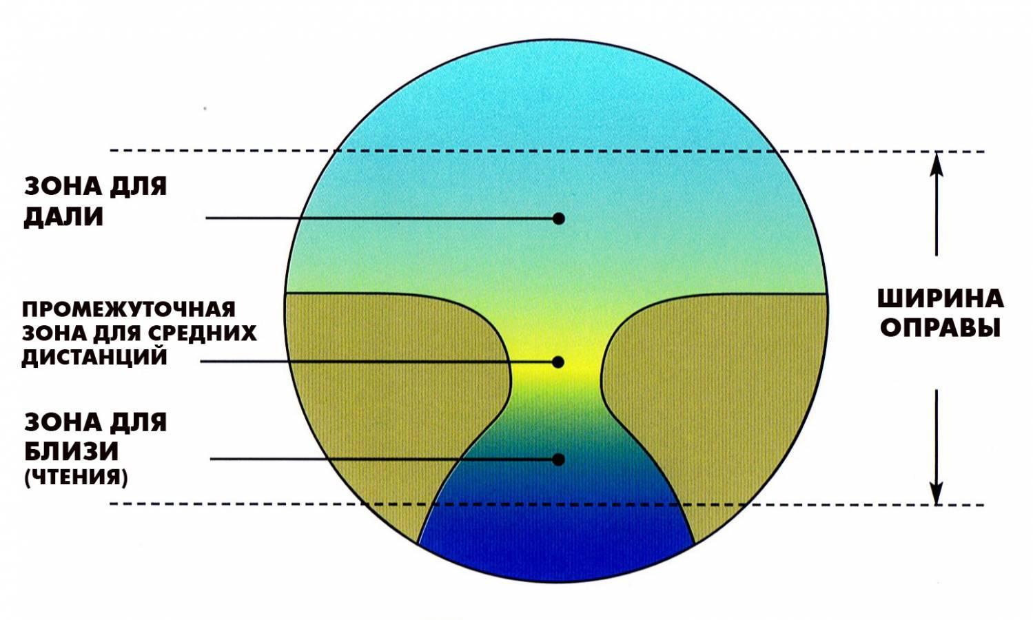 hyperopia és myopia és azok korrekciója)