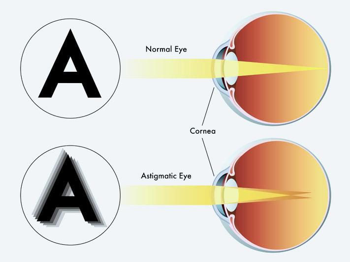 narancssárga látás