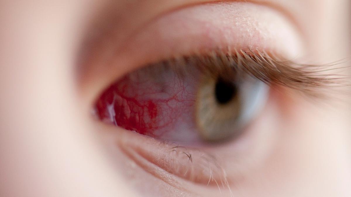 az egyik szem látásélességének csökkenése
