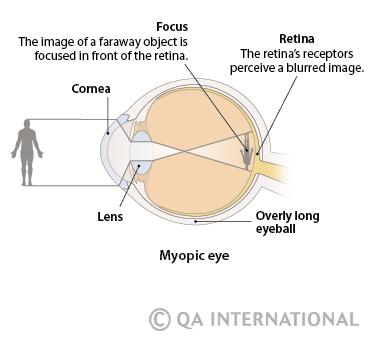 orvos élénk látás hé kicsi látomás