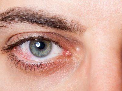 Amikor szeme megsérül