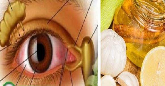 diéta a jó látás érdekében