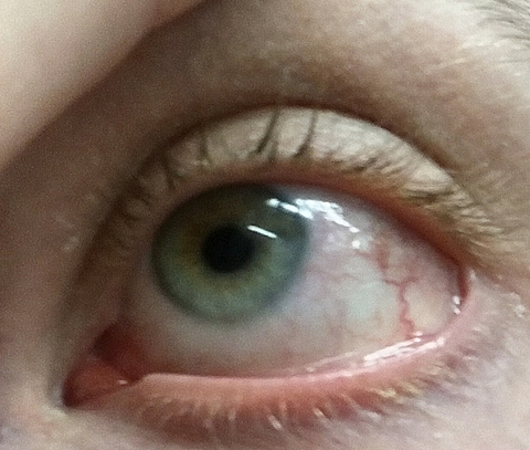 a bal szem elveszíti látását