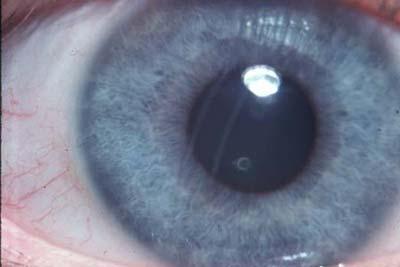 Gombás kötőhártya-gyulladás (szemészeti): a betegség eredete és a kezelési módszerek