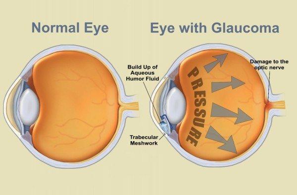 gyakorlatok a látás javítására mínusz egy