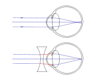 A túllátás (hypermetropia)