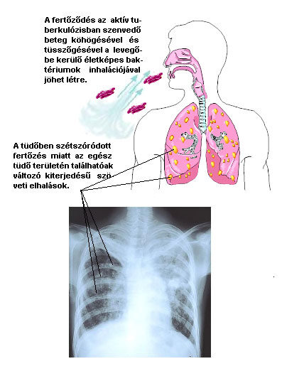 a tuberkulózis első gyanúja)