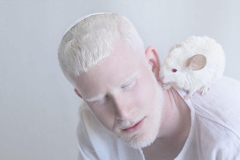 albínó emberek látási problémák