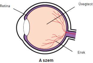 a látás károsodása 3)
