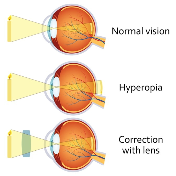 egyidejű hyperopia és myopia