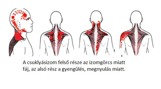 a nyaki gerinc és a látás csontritkulása)