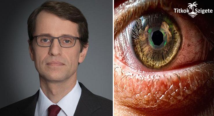 Disznószaruhártya beültetésével kapta vissza a látását a férfi