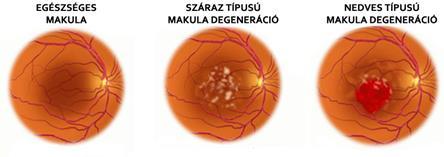 a látás gyors hanyatlása