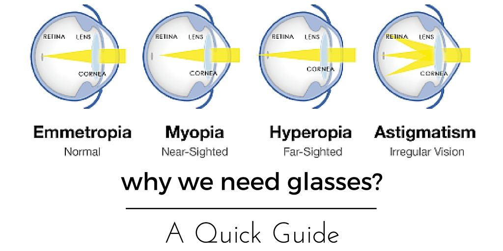 Hyperopia myopia astigmatism